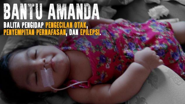 Balita Amanda Pengidap Pengecilan Otak & Epilepsi
