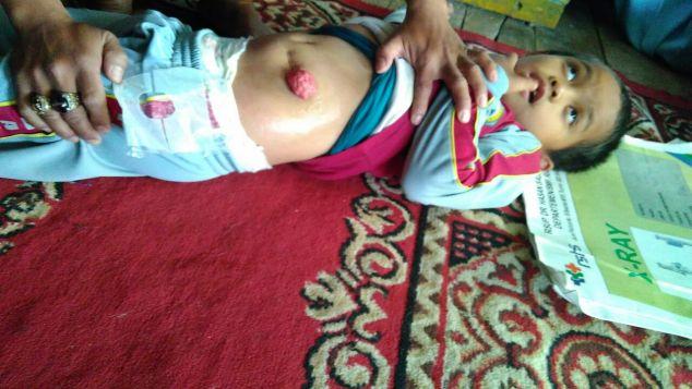 Save Tendi Nurhalim