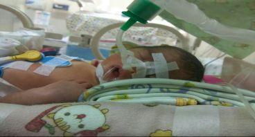 Bantu bayi Annasya agar tetap bernapas