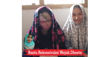 Bantu Rekonstruksi Wajah Dhesta