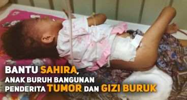 Bantu Sahira Balita Penderita Tumor dan Gizi Buruk