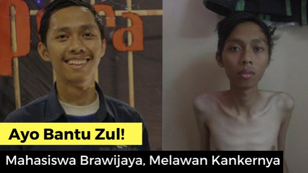 Bantu Zul, Mahasiswa UB Malang Melawan Kankernya