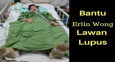 Lupus Merenggut Masa Depan Erlin Wong