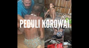 BANTU GIZI BURUK KOROWAI-PAPUA