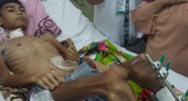 1000 Kantong Colostomy Bagi Ostomate DI Jawa-Barat
