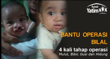 Bantu operasi Bilal