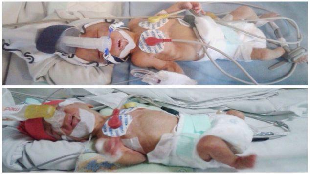 Bayi prematur berat 9 Ons