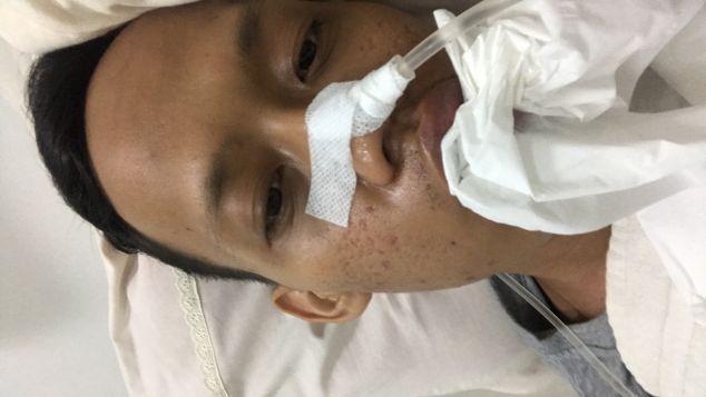 Mohon Bantuan Biaya Perawatan Kanker Lidah saya