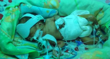 Bantu Bayi Khairan yang Lahir Prematur