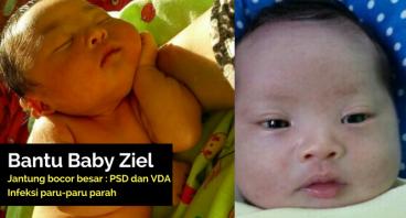 Bantu Baby Ziel Operasi dan Sembuh