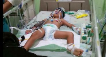 Bantu Billal, Penderita Meningitis sedang Koma