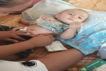 Bantu Biaya Operasi Bayi Tanpa Anus