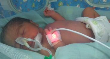 Bantu Lunasi Biaya Perawatan Bayi Syafia Humairah