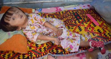 7 Tahun Mengidap Hidrosefalus, Dini Butuh Bantuan