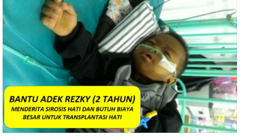 Bantu Adek Rezky Transplantasi Hati