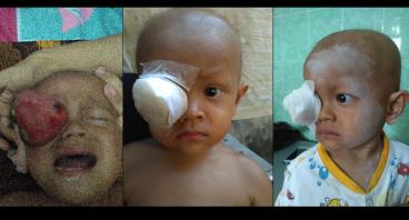 Bantu Fauzan Lawan Kanker Mata (Rhabdomyosarcoma)