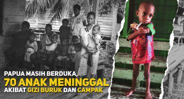 Bantu Anak-Anak Suku Asmat Dari Gizi Buruk