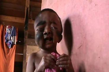 Yuuuk, Bantu adik Rahmad yang menderita sakit aneh