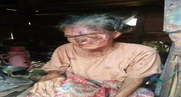 Bantu Nenek Suna Berobat Dirumah Sakit