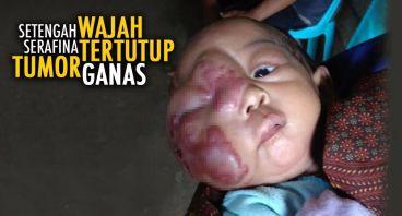 Bantu Serafina Angkat Tumor Kulit Ganas
