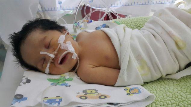 Bayi Kalula dengan Polihidramnion