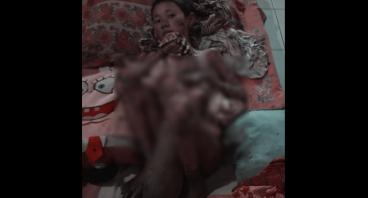 Bantu Fikri Yang Sudah 4 Tahun Menderita Kusta