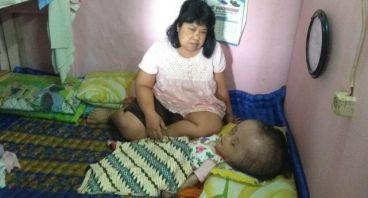 Rima bocah asal Bandung yang mengidap hydrosepalu