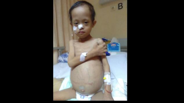 Azzam menderita down syndrome dan Tumor Teratoma