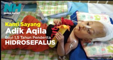 Kami sayang adik Aqila, Penderita Hydrosefalus