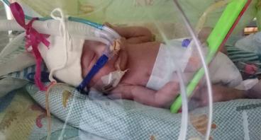 Bantu Baby Rafael yang Lahir Prematur