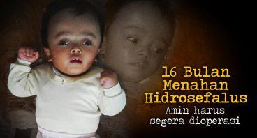 Bayi Amin Terpaksa Tahan Sakit Hidrosefalus