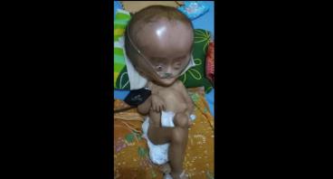 Bantuan Untuk Ade Ahdan , Penderita Hidrosefalus