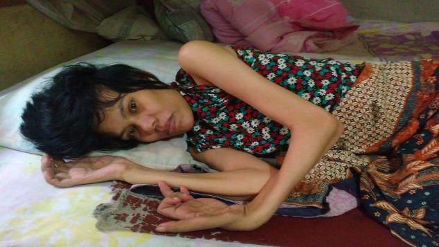 Bantu ibu Rejeki, Ibu Penderita Lumpuh Total.