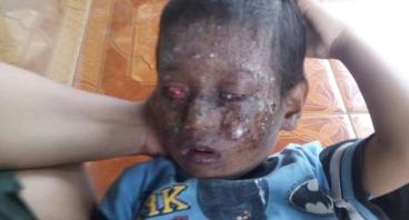 Bantuan Pengobatan Keluarga Bp.Khorul Huda