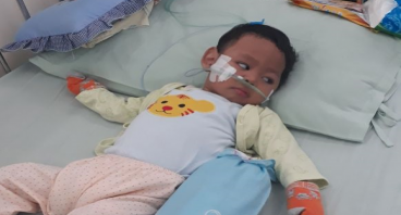 Bantu Bayi Ino Sembuh dari Meningiocepaly