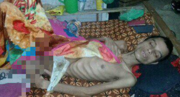 Bantu Raden Yatim Piatu patah tulang & Bocor Usus