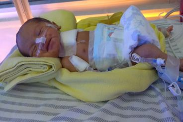 Bantu baby adzhani menutup lubang di lambung nya
