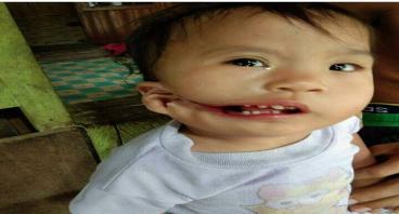 Bantu Aina untuk Tersenyum