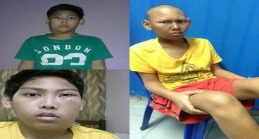 Keluarga menggalang dana untuk kanker nasofaring