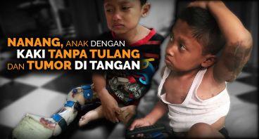 Nanang, 6th Hidup Tanpa Tulang Kaki & Tumor Tangan