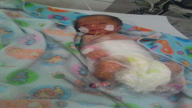 Bantu Ibu dan Bayi Aisyah yang Lahir Prematur