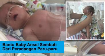 Bantu Baby Ansel Sembuh Dari Peradangan Paru-paru