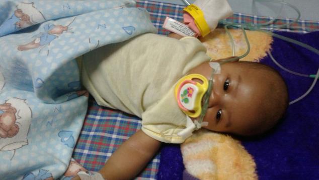 Bantu Kayla Sembuh dari Penyakit Jantung Bawaan