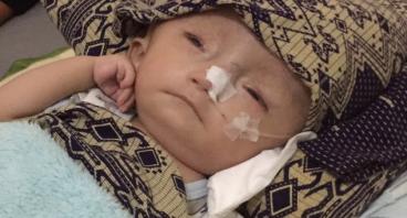 Operasi Besar Dibutuhkan Untuk Kepala Baby Noah