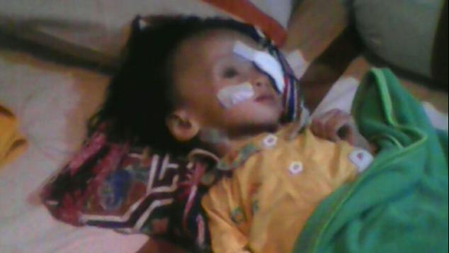 Bantu Angel sembuh dari Retinoblastoma