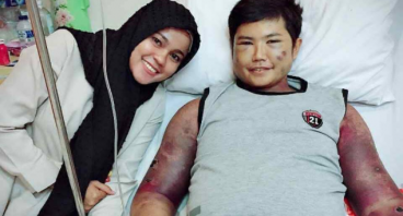 Bantu Badawi melawan Autoimun dan Lupus