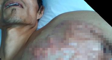 Bantu Bapak hendrik melawan Tumor Ganas