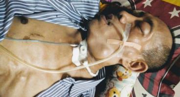 Bantu Hasan Lawan Tumor dan Kelenjar Getah Bening