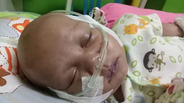 Bantu Fely Operasi Jantung
