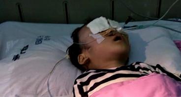 Bantu gaga melawan kanker neuroblastoma